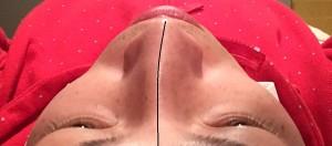 鼻 ビフォー①