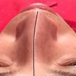 鼻の歪みに困ったら心斎橋美容整体サロンへ。